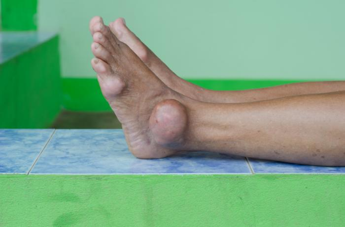 Arthritis and Gout in feet