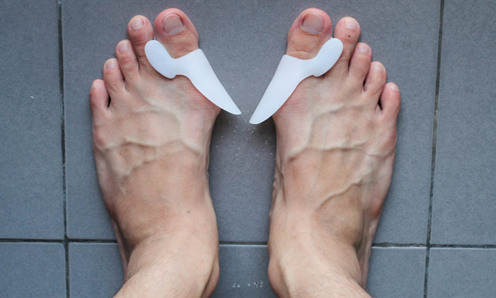 Bunion care and management