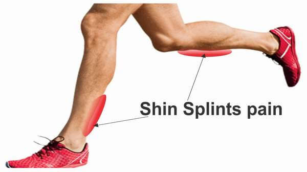 Painful Shins (Shin splints)