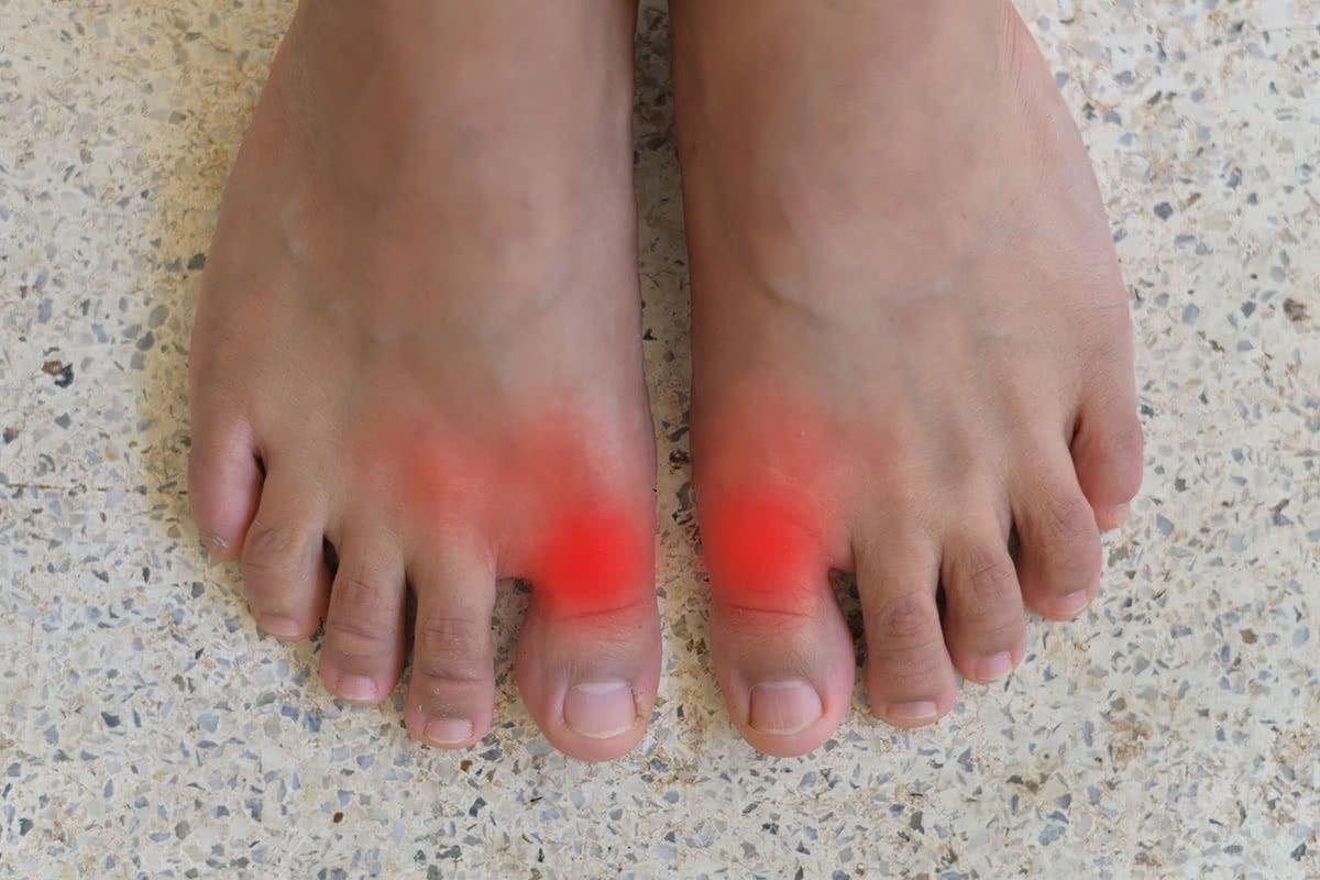 Stiff Big Toes – Hallux Rigidus