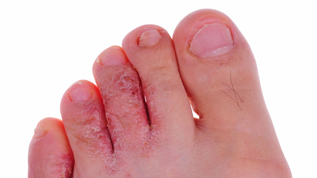 Athlete's Foot & other Infections